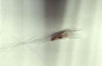 Sebadenitis - Haarbüschel